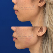 Using filler to augment the chin without surgery.