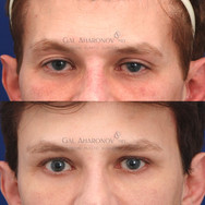Upper eyelid and temple filler for treatment of deflationary change and upper eyelid asymmetry.