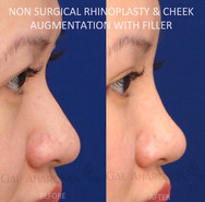 Non surgical rhinoplasty. Filler was used to make the nose appear smaller by raising the tip, bridge of the nose, and cheek area. Raising the bridge of the nose with fillers can balance the nose and make the tip seem smaller.
