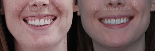 gummy_smile_treatment_without_surgery_01