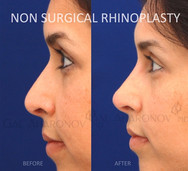 Non Surgical Rhinoplasty building the bridge and raising the tip of the nose with filler to create a more cutesie looking nose.