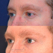 Non Surgical correction of eyelid asymmetry with filler.