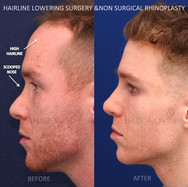 Same patient 2 YEARS after treatment with no additional filler placed.