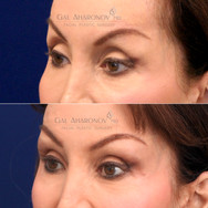 Correction of overly aggressive upper eyelid surgery and brow lift by adding volume to improve hollowing.