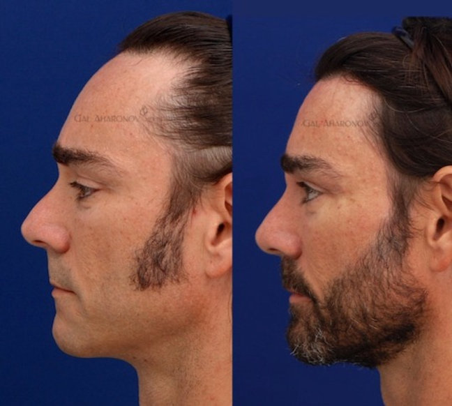 hairline lowering in men to reduce the size of the forehead