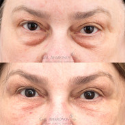 This patient had significant under eye bags. She had medical issues preventing her from being a surgical candidate. Filler was used to hide the bags and create a smoother transition.