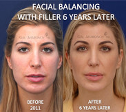 On this young lady, filler was used to restore facial width and balance. This is her over 6 years later.