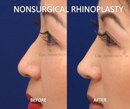 Nonsurgical Rhinoplasty to create a softer nose shape.