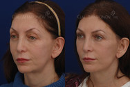 This patient had facial volume loss especially around the eyes and lateral face. She had an upper eyelid asymmetry, jowling, and hollowness under the eyes. Facial filler was used around her eyes, cheeks, jawline, and temples to rebalance her face and widen it. Her eyes look fresh. Her jawline looks sharper making her neck look better.