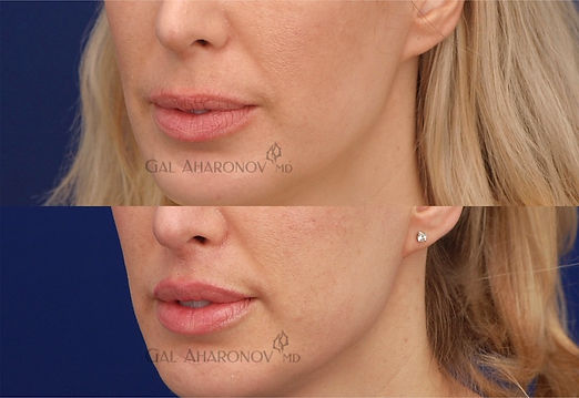 upper_liplift_lip_lift_surgical_03.jpg