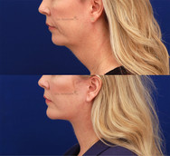 Face and necklift with tightening of the neck muscles and removal of excess neck tissues.
