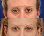 Using filler to restore volume around the eye. Filler was placed in the upper eyelid and brow region to reinflate the deflated skin. Filler was also placed in the under eye area to reduce the appearance of dark circles and hollowness.