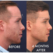 This youngle gentleman was always bothered by his hairline. He underwent a ONE stage forehead reduction using FROST. He is only 4 months after surgery. He had a small amount of hair grafting at the same time which has not grown in yet. His hair looks thicker because of the removal of the thin portion of his hairline which makes his new hairline much thicker.