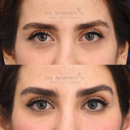 Non Surgical eyelid and brow deflation correction with filler.