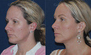 Closed rhinoplasty combined with liposuction of neck.