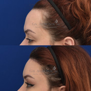 Hairline lowering combined with a brow lift about 1 month afer surgery.