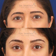 Surgical brow lift to address upper eyelid hooding.