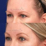 Endoscopic brow lift about 6 months after surgery. Patient had been getting under eye filler prior to her surgery. Scroll to see photos from years prior.