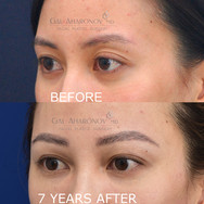 Non Surgical upper eyelid asymmetry correction with filler.