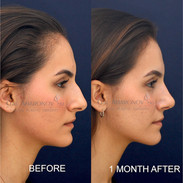 This patient had breathing issues and did not like the shape of her nose. This is less than one month after surgery. She still has swelling that will subside, but she is already breathing better and loves the new shape of her nose.