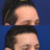 revision-hairline-lowering-2.jpg