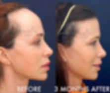 female-hairline-lowering-forehead-reduct