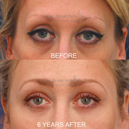 Restoration of eyelid and temple volume. This patient was globally hollow. Filler was injected into her temples, upper eyelids, and under eye areas to restore a more full, less hollow appearance. She is 6 YEARS after her initial treatment.
