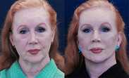Facelift combined with both upper and lower eyelid surgery.