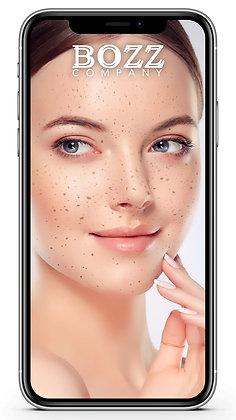 Freckles Pack