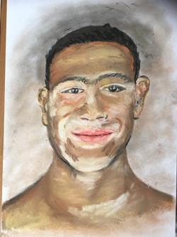 Vitiligo I