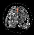 pulmones copy.png