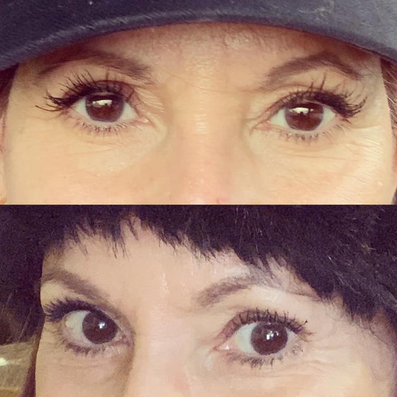 Do lash growth serums work? We have proof. It all began with LOVE.