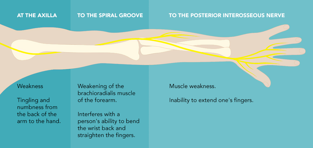 SYMPTOMS OF RADIAL NERVE INJURY