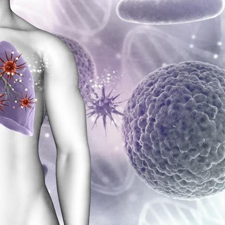Caso clínico 2: Síndrome tóxico y hemoptisis.