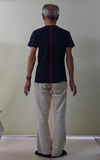 側弯症003-治療後2.jpg