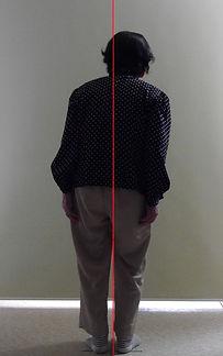 側弯症002-治療前.jpg