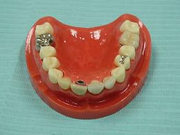 歯周病の相談