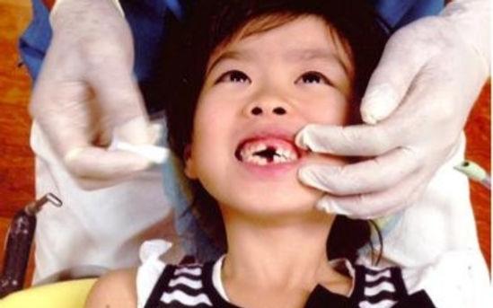 小児歯科治療中