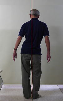 側弯症003-治療前1.jpg
