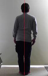 側弯症004-治療前.jpg