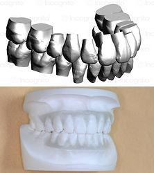 矯正歯科写真