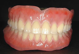 エステティック義歯