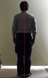 側弯症004-治療後2.jpg