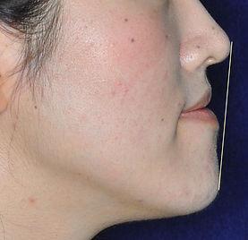 顎変形症の治療前