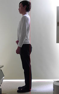 反り腰002-治療後.jpg