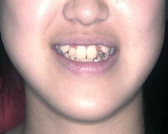 叢生(乱ぐい歯)の治療前