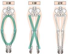O脚・X脚の変形の改善