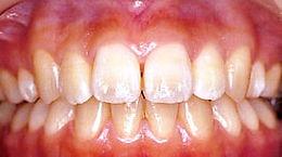 歯の漂白前