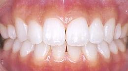 歯の漂白後