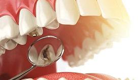 dientes-con-caries.jpg